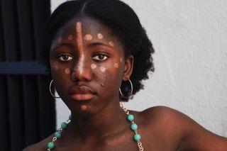 africanbeauty beauty blackandwhite blackgirlmagic blm colour eyes nigerian photography sonya5000 sonyphotography youngphotographer